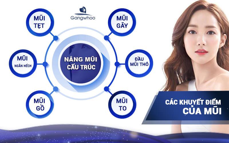 Nên nâng mũi cấu trúc vì phương pháp này giúp khắc phục hầu hết các khuyết điểm mũi mà người Việt gặp phải