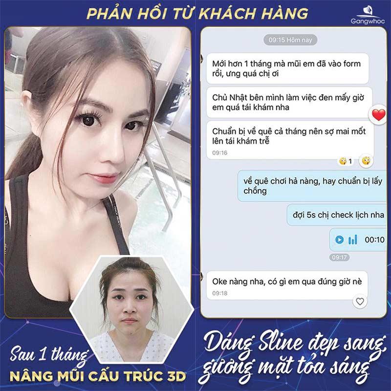 Feedback của khách hàng sau khi nâng mũi cấu trúc 3D tại TMV Gangwhoo