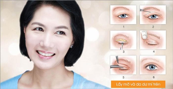 Lấy Mỡ Mí Mắt Loại Bỏ Bọng Mắt