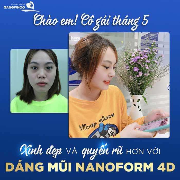 Nâng mũi (Nanoform) Độc Quyền Tốt Nhất TPHCM 2021 7