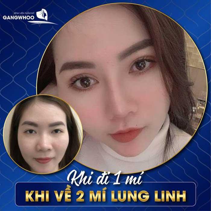 Bấm Mí (Dove Eyes), Thổi Hồn Cho Đôi Mắt Long Lanh (Hot Trend 2021) 3