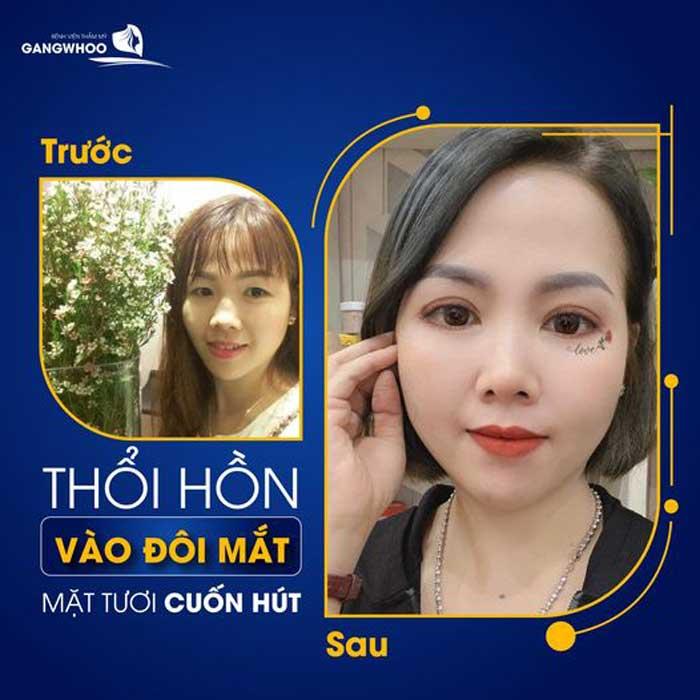 Bấm Mí (Dove Eyes), Thổi Hồn Cho Đôi Mắt Long Lanh (Hot Trend 2021) 2
