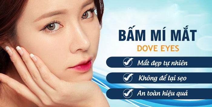 Bấm Mí Dove Eyes, Thổi Hồn Cho Đôi Mắt Long Lanh (Hot Trend 2021)
