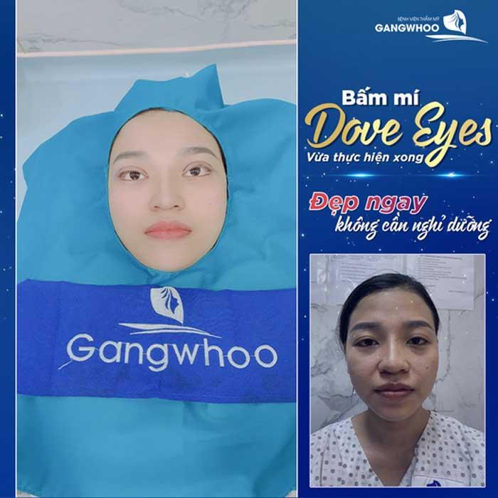 Bấm Mí (Dove Eyes), Thổi Hồn Cho Đôi Mắt Long Lanh (Hot Trend 2021) 4