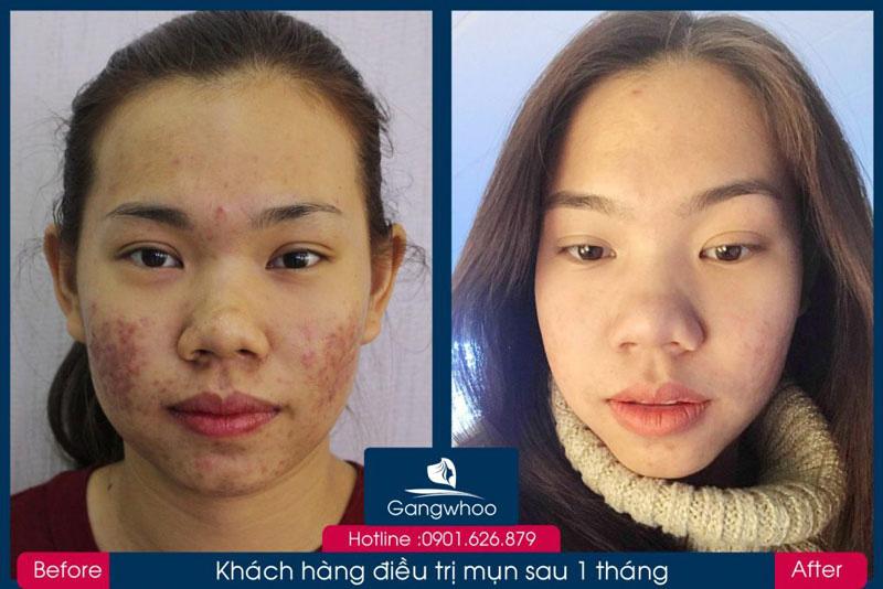 Điều Trị Mụn Bằng Công Nghệ Độc Quyền Skin Get Mới Nhất 2020