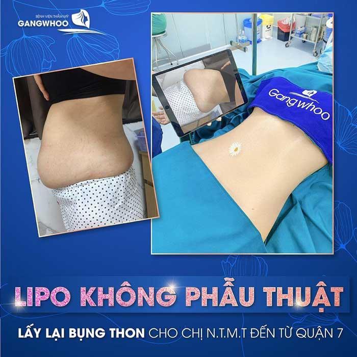 Công Nghệ Giảm Mỡ Lipo Ultrasound Giảm Ngay Lần Đầu 8