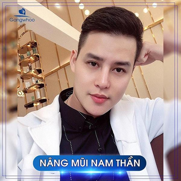 Nâng Mũi Nam Giới Dáng L-Line Hóa Nam Thần HOT 2020
