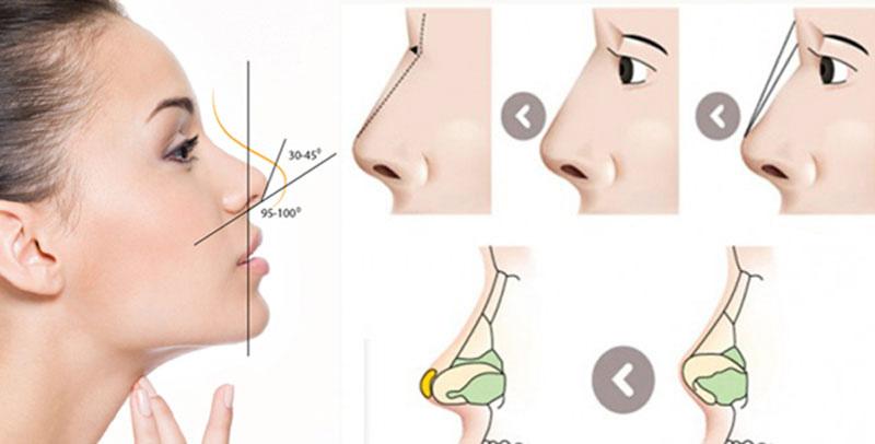 Cách thức nâng mũi SLine 3D
