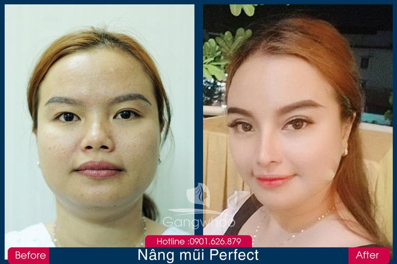 Hình Trước và sau Khi Khách Hàng Nâng Mũi PERFECT Gangwhoo