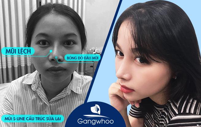 Giới Thiệu Thẩm Mỹ Viện Hàn Quốc Gangwhoo 10