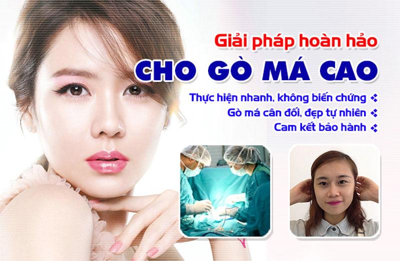 Gò Má Cao Tức Thì Gangwhoo