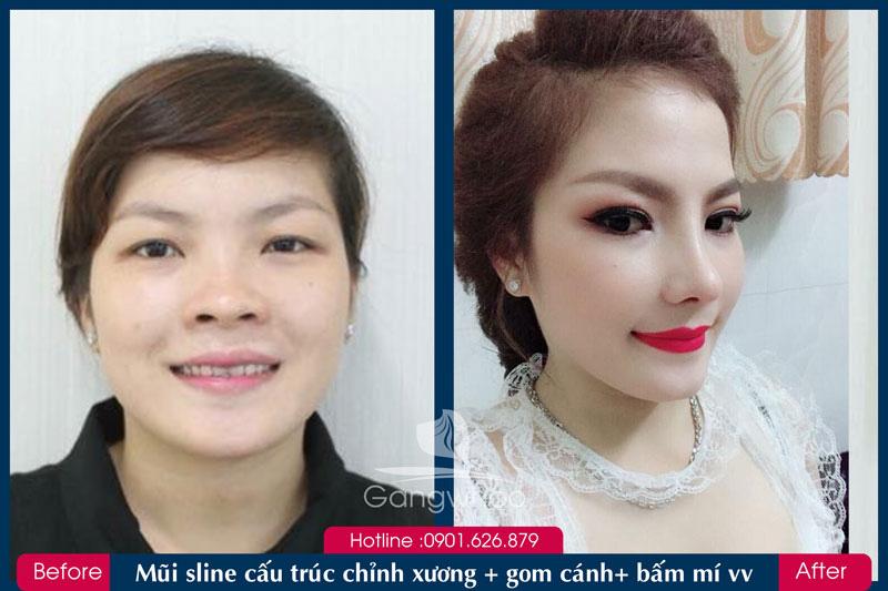 Hình trước và sau khi khách hàng Thu Nhỏ Đầu Mũi
