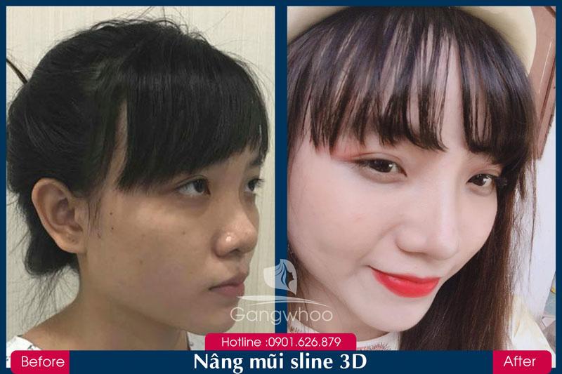 Hình Ảnh Trước và Sau Khách hàng Nâng Mũi SLine 3D Gangwhoo