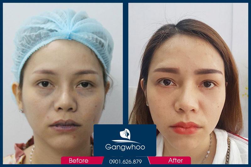 Hình Ảnh Trước và Sau khi Sử Dụng dịch vụ Làm môi Trái Tim Bằng Chỉ Collagen Gangwhoo