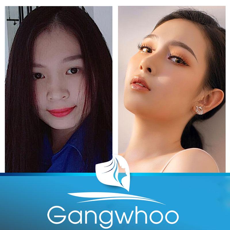Khách hàng trải nghiệm dịch vụ nâng mũi tại TMV Gangwhoo