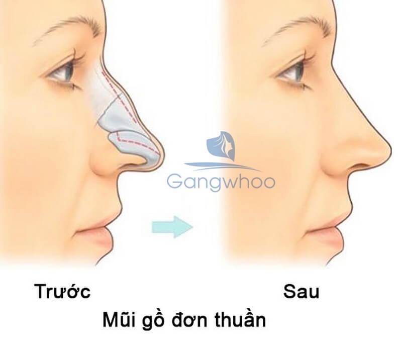 mài gồ xương mũi tại TMV Gangwhoo