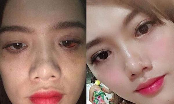 Sửa Mí Mắt Hỏng Uy Tín, Đẹp Nhất Tại TPHCM 2021