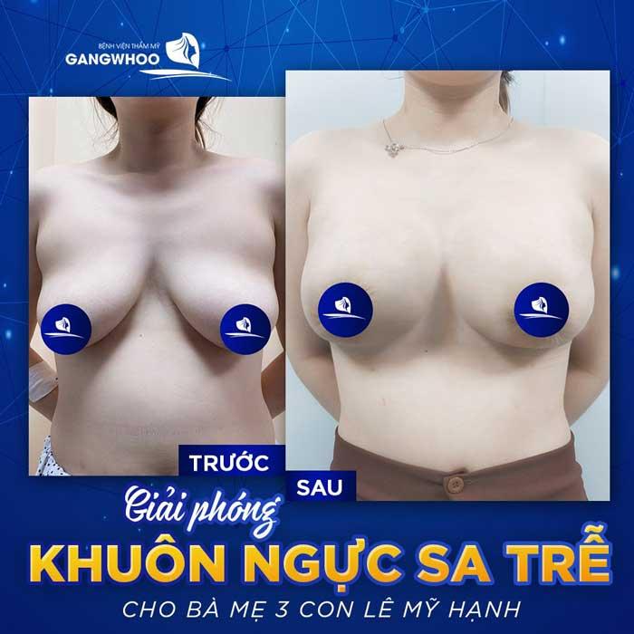 Treo Ngực Sa Trễ - Lấy Lại Thuở Xuân Thì Cho Bầu Ngực 4
