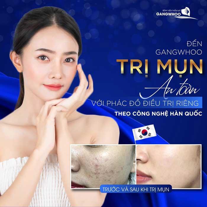 Điều Trị Mụn Bằng Công Nghệ Độc Quyền (Skin Get) Mới Nhất 2021 4