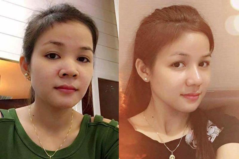 Hình ảnh khách hàng thẩm mỹ mũi tại Gangwhoo 11