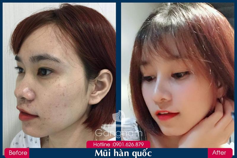 Hình ảnh khách hàng thẩm mỹ mũi tại Gangwhoo 2