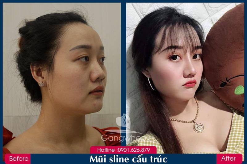 Hình ảnh khách hàng thẩm mỹ mũi tại Gangwhoo 32