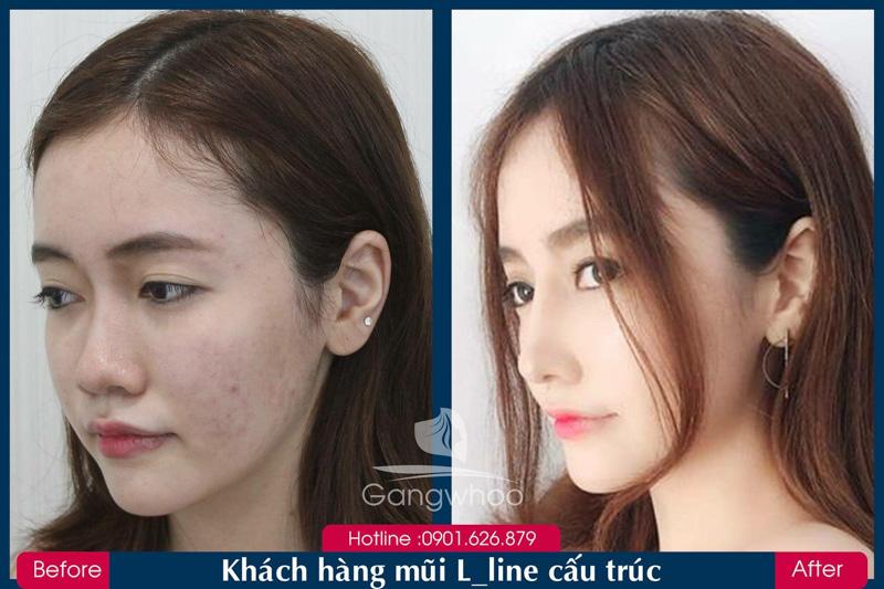 Hình ảnh khách hàng thẩm mỹ mũi tại Gangwhoo 35