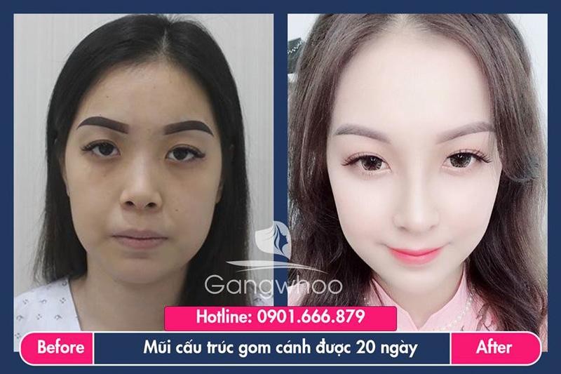 Hình ảnh khách hàng thẩm mỹ mũi tại Gangwhoo 14