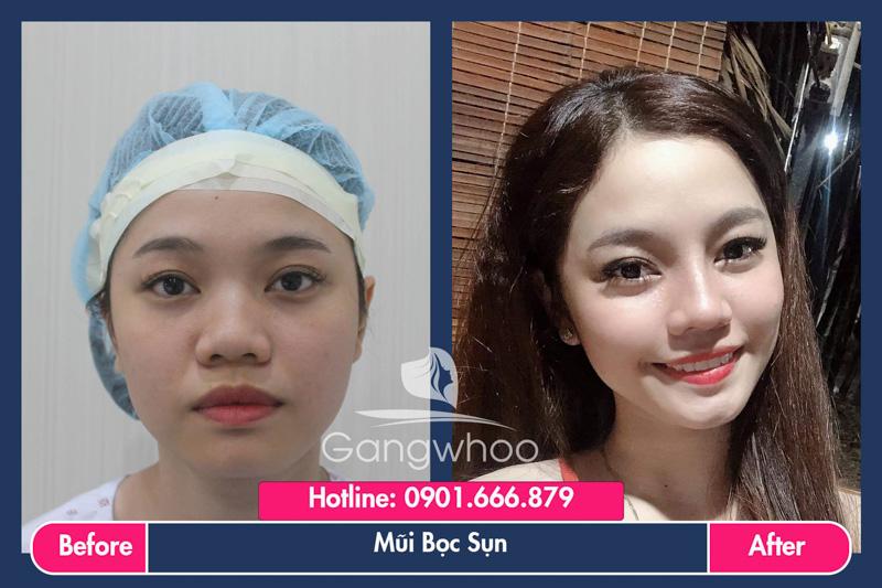 Hình ảnh khách hàng thẩm mỹ mũi tại Gangwhoo 37