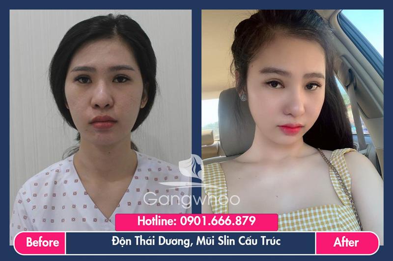 Hình ảnh khách hàng thẩm mỹ mũi tại Gangwhoo 17