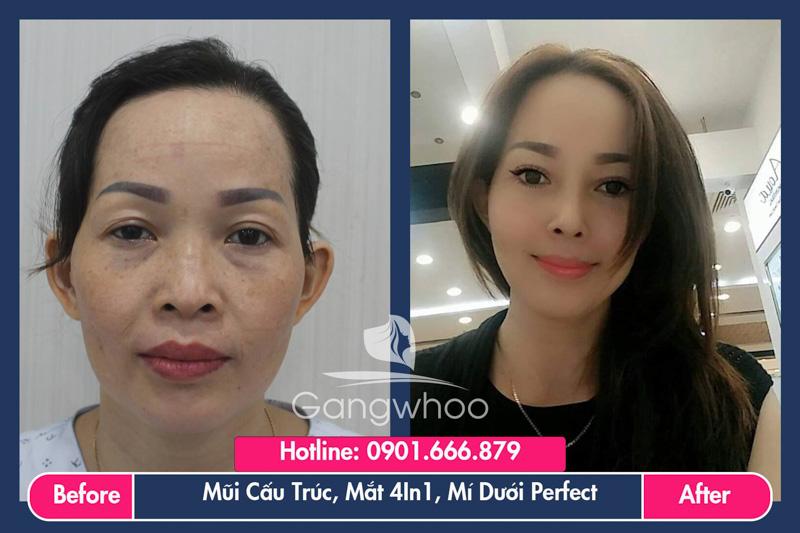 Hình ảnh khách hàng thẩm mỹ mũi tại Gangwhoo 18