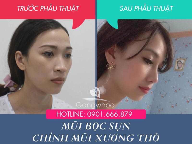 Hình ảnh khách hàng thẩm mỹ mũi tại Gangwhoo 40