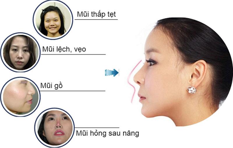 Nâng Mũi Cấu Trúc S-Line 4D Gangwhoo