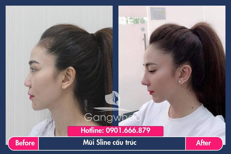 Hình ảnh khách hàng thẩm mỹ mũi tại Gangwhoo 24