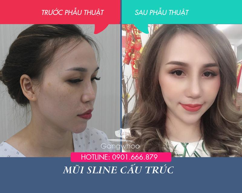 Hình ảnh khách hàng thẩm mỹ mũi tại Gangwhoo 27