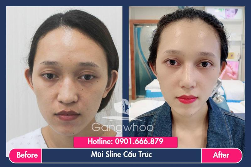Hình ảnh khách hàng thẩm mỹ mũi tại Gangwhoo 28