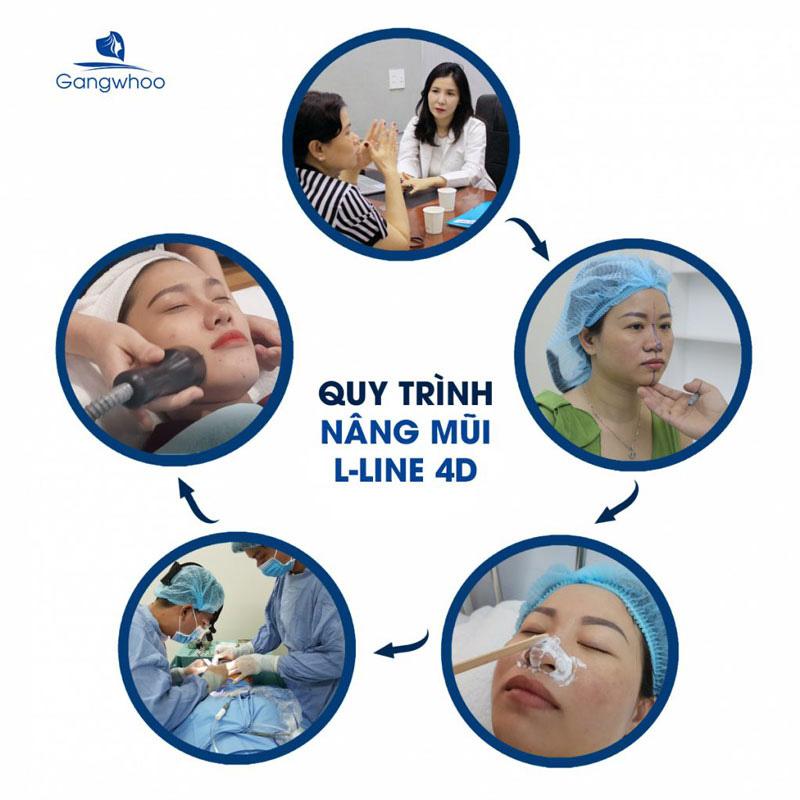 Quy Trình Nâng Mũi S-line 4D Gangwhoo