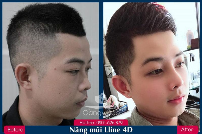 Khách Hàng Nâng Mũi S-Line 4D Gangwhoo