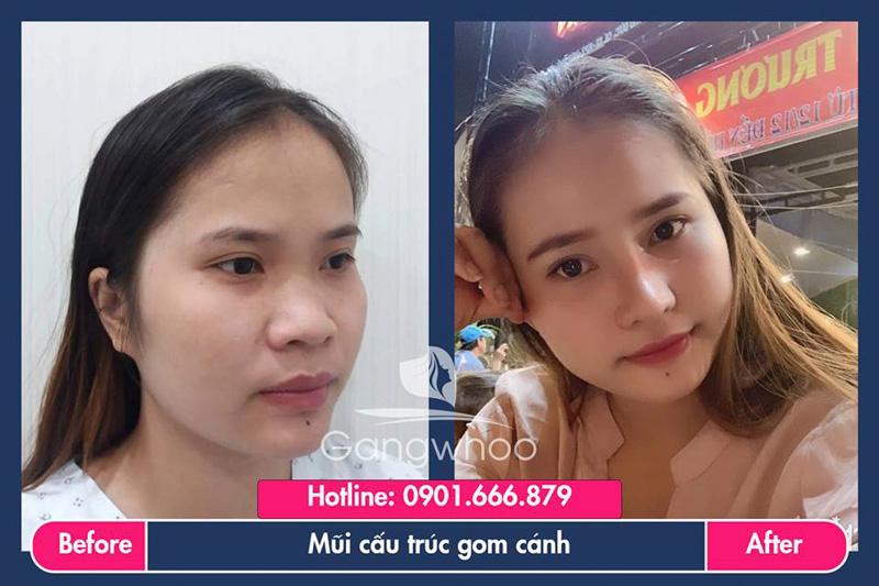 Hình ảnh khách hàng thẩm mỹ mũi tại Gangwhoo 36