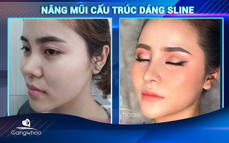 khách hàng sau khi sử dụng dịch vụ nâng mũi cấu trúc dang Sline tại TMV Gangwhoo