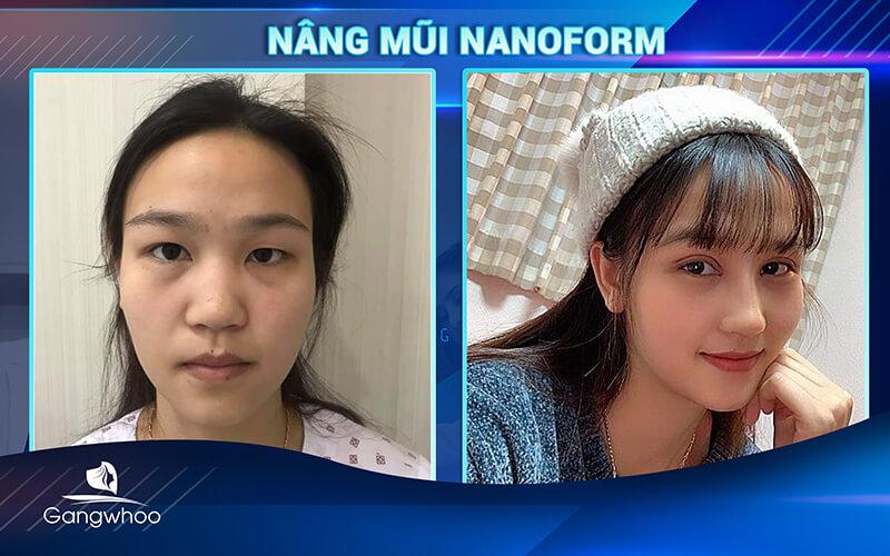 khách hàng sử dụng dịch vụ nâng mũi nanoform