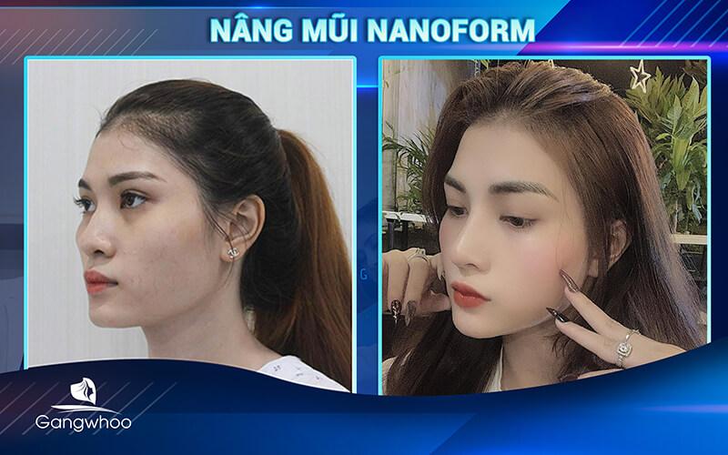 khách hàng nâng mũi nanoform