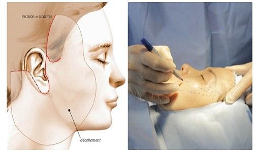 Nâng Cơ mặt Bằng Chỉ Collagen Gangwhoo