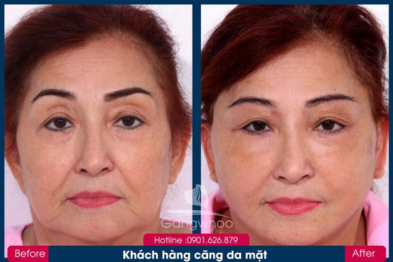 Khách Hàng Căng Da Mặt Bằng Chỉ Collagen Gangwhoo