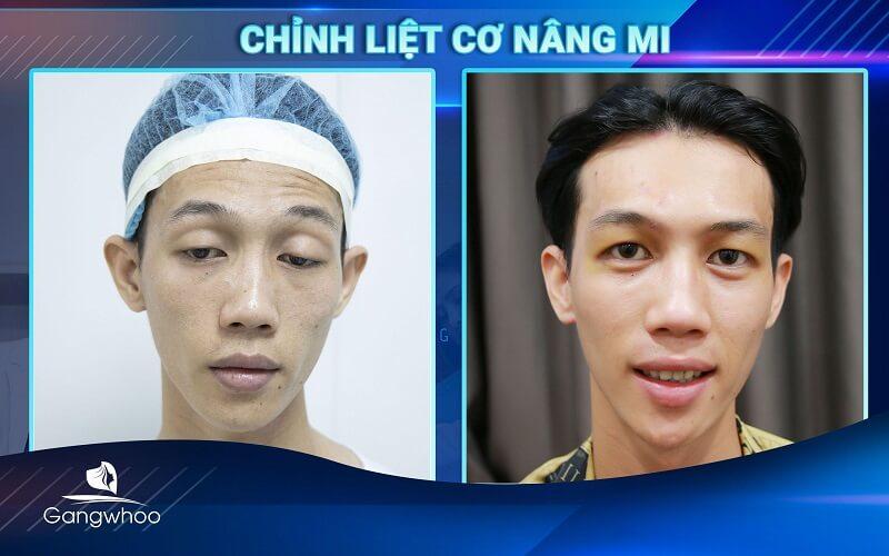 Khuôn mặt thiện cảm hơn sau khi chỉnh liệt cơ bẩm sinh (Khách hàng tái khám)