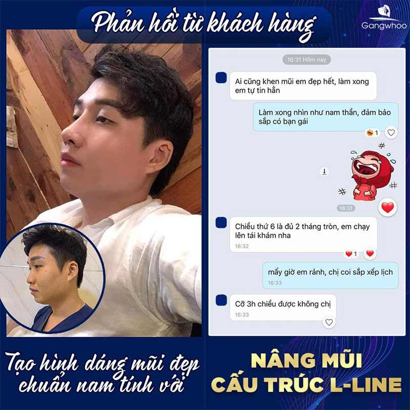 Feedback của khách hàng sau khi nâng mũi cấu trúc L-Line tại tmv Gangwhoo