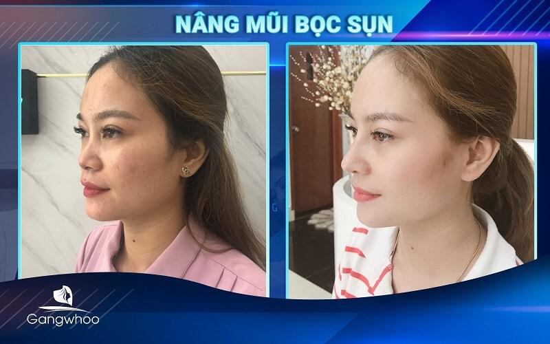 Thay đổi diện mạo khi nâng mũi bọc sụn tại TMV Gangwhoo