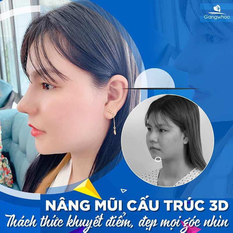 Khách hàng nâng mũi cấu trúc 3D