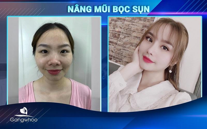 khách hàng sau khi nâng mũi bọc sụn tại TMV Gangwhoo