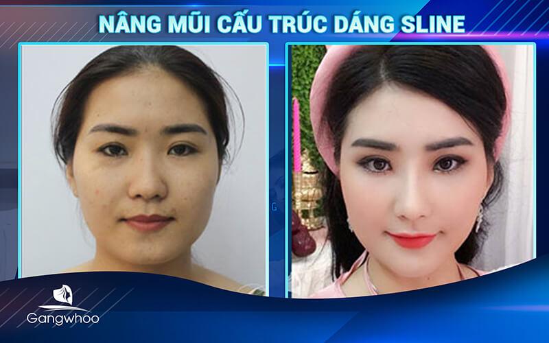 khách hàng sau khi sử dụng dịch vụ nâng mũi cấu trúc dáng Sline tại TMV Gangwhoo